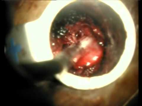 Microendoscopic Decompression for spinal stenosis (MetrX). Dr Arvind G Kulkarni.mpg