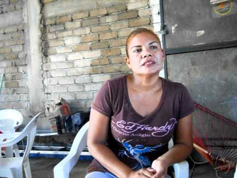 Dolor de Cuello y Anginas Inflamadas con Dolor (Curada 5 meses atras) Acapulco.