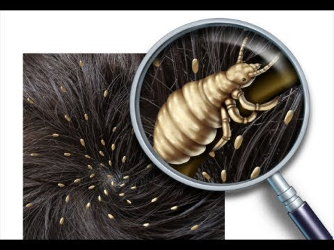 How to get rid of head lice fast