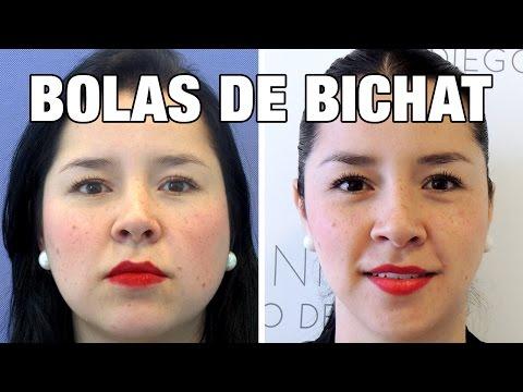 Extracción Bolas de Bichat Antes y Después | Estefanía