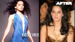 Top 5 Bollywood actresses who became beautiful through plastic surgery