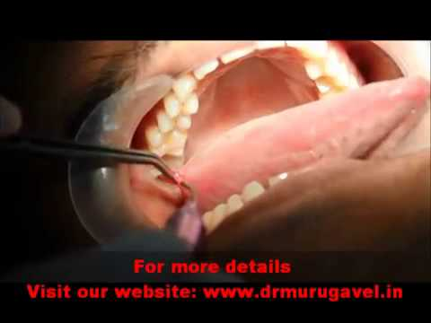 Video Excision of FIBROMA in tongue with ZOLAR laser