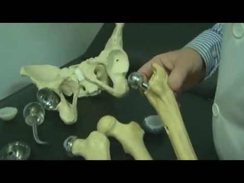 Brasil é referência em cirurgia de prótese de quadril - 29.nov.2011