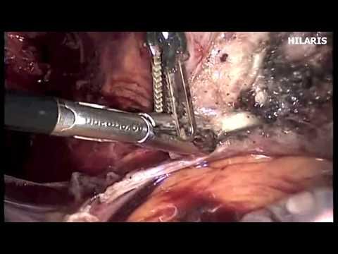 Λαπαροσκοπική Ολική Υστερεκτομή - Total Laparoscopic Hysterectomy