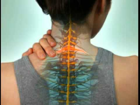 Cervical Radiculopathy - DePuy Videos