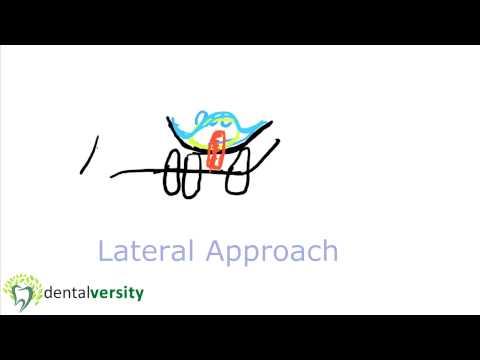 Sinus Lift Procedure