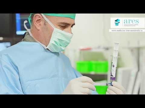 Centrele de Excelenta ARES | Despre Embolizarea Fibroamelor Uterine | Dr. Rares Nechifor