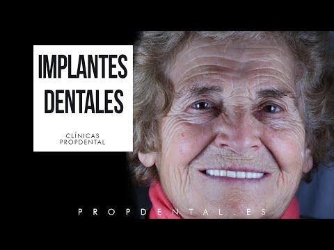 Testimonio de Prótesis sobre implantes en Barcelona