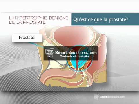 Hypertrophie bégine de la prostate