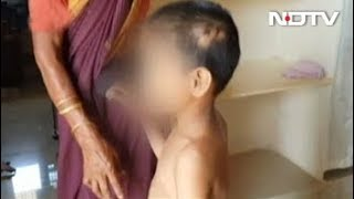 मानसिक रूप से कमज़ोर बच्ची को माता-पिता कथित तौर पर खिला रहे थे साबुन, की गई रेस्क्यू - NDTVINDIA
