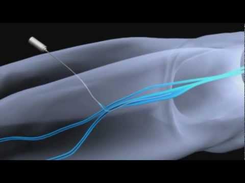 Animazione intervento laser alla vena safena