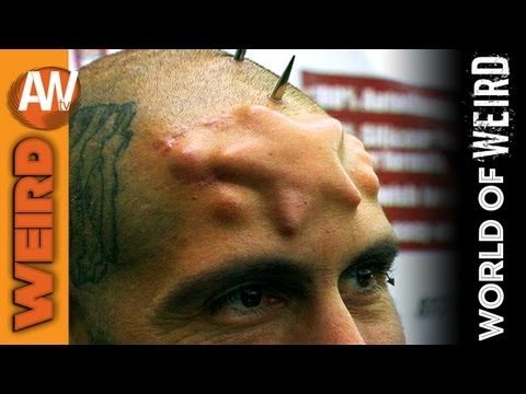 World of Weird Skull Implants