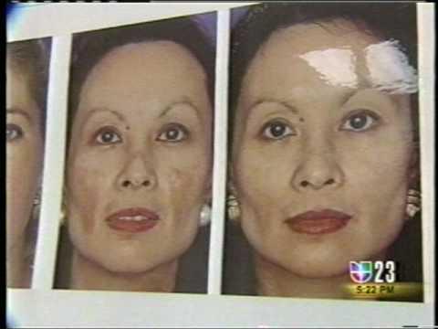 White Peel, tratamiento de acne, melasma y secuelas