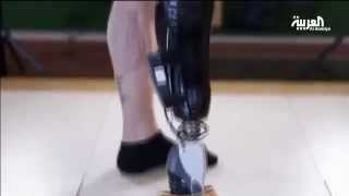 فيديو| جهاز لمبتوري الأعضاء يمكنهم من التحكم بأطرافهم الصناعية