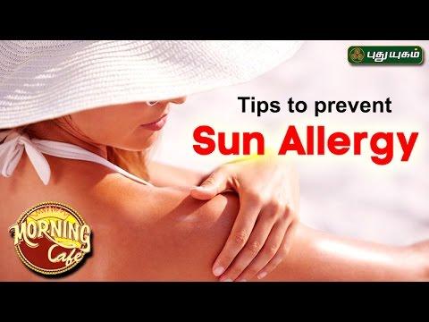 Tips to prevent Sun Allergy  | அழகு கலை For Beauty | Morning Cafe | 26/04/2017