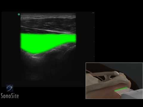 3D How To: Ultrasound Exam of the Posterior Groove of the Shoulder - SonoSite Ultrasound