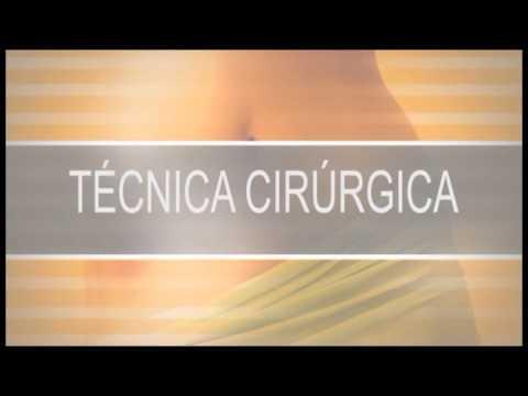 Abdominoplastia - Plástica abdominal