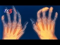 Dr.Rajkiran Suggestions For Rheumatoid Arthritis Problems