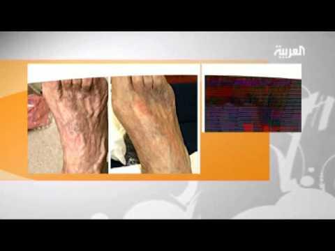 مشكلة دوالي الساقين أسباب ظهورها وطرق علاجها