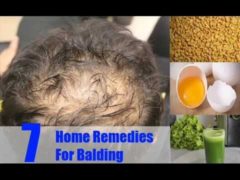 7 Best Home Remedies For Balding