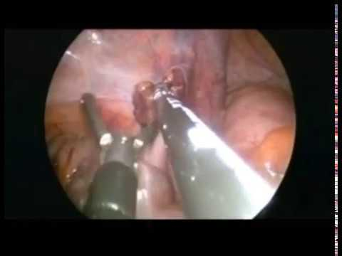 single port laparoscopic varicocelectomy