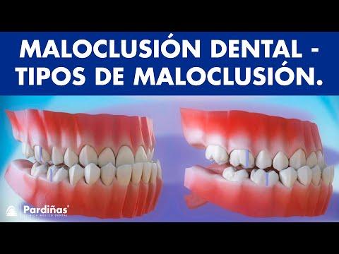 Maloclusión dental: tipos ©