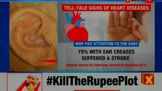 A unique finding by Maharashtra doctors; study finds 95% with ear crease have heart disease - NEWSXLIVE