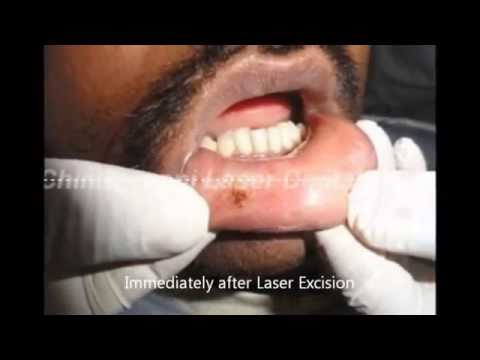 Laser Excision of Traumatic Fibroma,India
