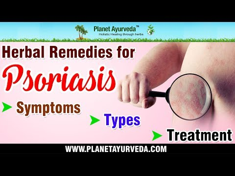 Herbal Remedies for Psoriasis | Treat Psoriasis Naturally | Natural Treatment