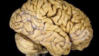 دراسة: النوم يساعد على استعادة الذاكرة