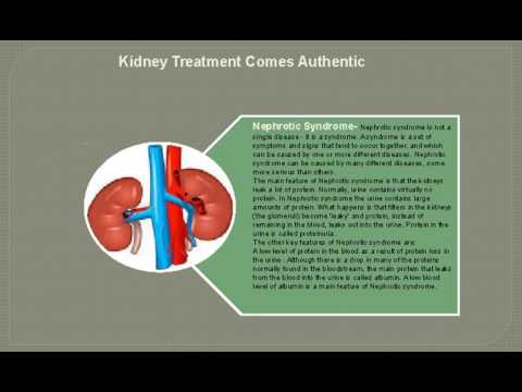 Kidney Treatment By Puneet Dhawan