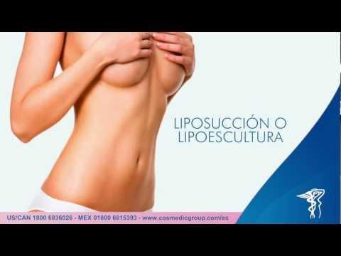 Liposucción o Lipoescultura Cirugía Plástica Cosmedic