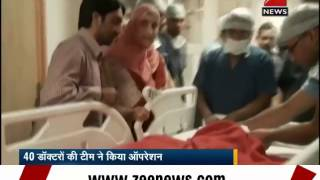 Delhi: Conjoined twins sharing liver successfully separated - ZEENEWS