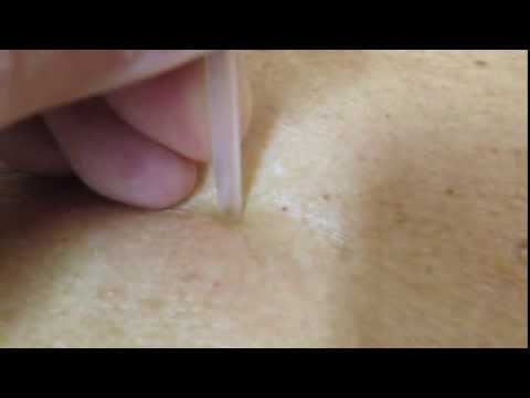 角栓 blackhead comedone extract 11