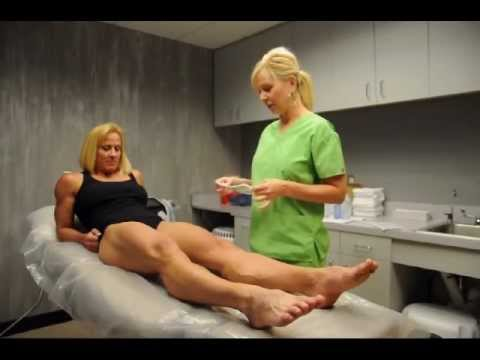 Holly Chambliss Exilis skin treatment part 1