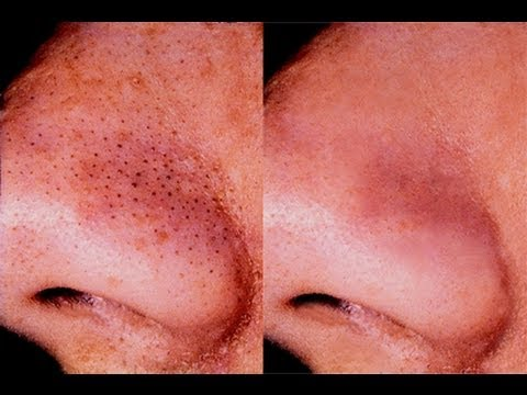 HOW TO: GET RID OF BLACKHEADS
