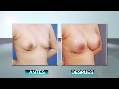 AUMENTO DE BUSTO::BREAST AUGMENTATION::MATAMOROS, RIO GRANDE VALLEY