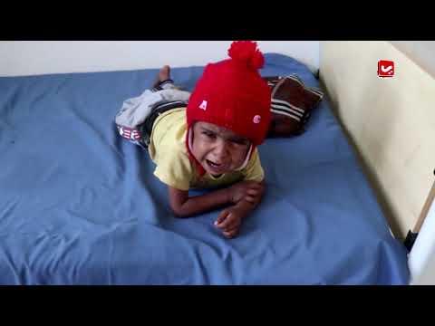 الطفوله باليمن ... حقوق ينتهكها الجوع والمرض والجهل | المرصد الحقوقي | تقديم اسامة سلطان