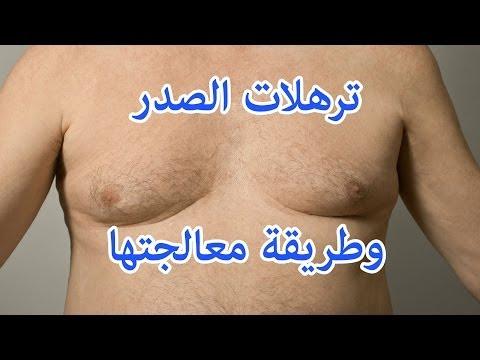 ترهلات الصدر عند الرجال وطريقة علاجها
