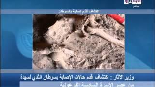 """اكتشاف أقدم حالة """"سرطان ثدي"""" تعود إلى العصر الفرعوني"""