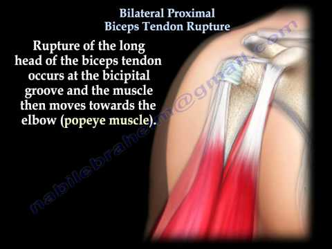 Bilateral Proximal Biceps Tendon Rupture - Everything You Need To Know - Dr. Nabil Ebraheim