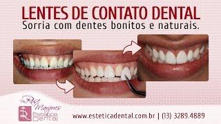 Dra. Rose Marques fala sobre lentes de contato dental no Baile Oficial da Cidade de Santos 2016 - Onnigumo Show