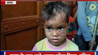 Uttar Pradesh: आगरा में आदमखोर बन्दर का आतंक - ITVNEWSINDIA