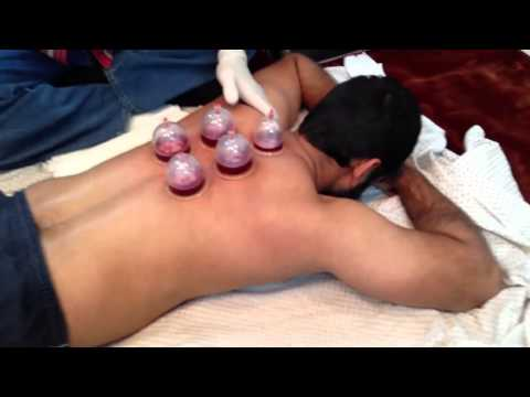 Session of Hijama Cupping