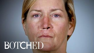 """Botched"" Patient Only Has 1 Huge Nostril 