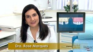 Diferença entre Prótese Fixa e Implante