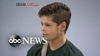 13-year-old shark attack survivor returns to school - ABCNEWS