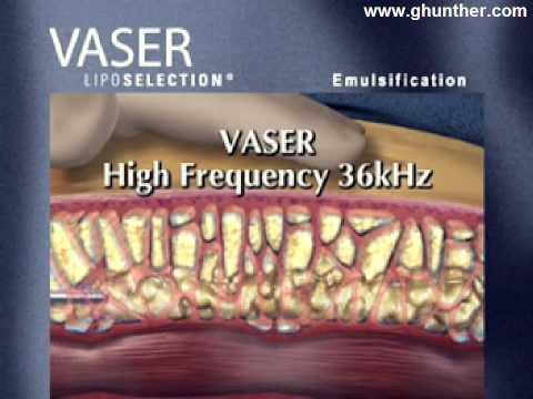 Tecnología Vaser Lipo: Resumen de procedimiento