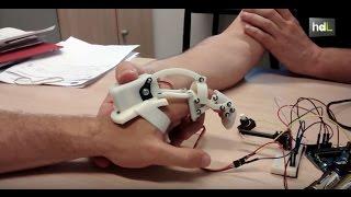 Así se puede acelerar la recuperación de lesiones en dedos