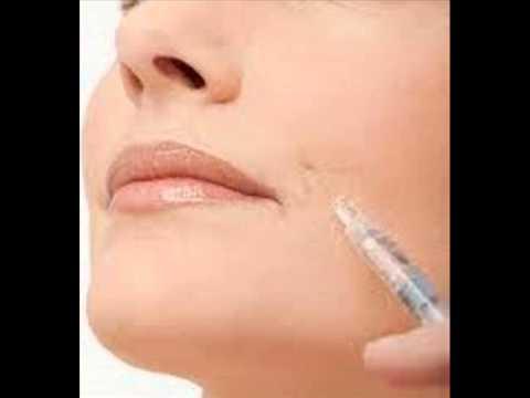 Ácido hialurónico - Infiltraciones para hidratar la piel